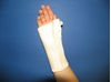 Long wrist orthosis with palm metal strip (C180) attēls
